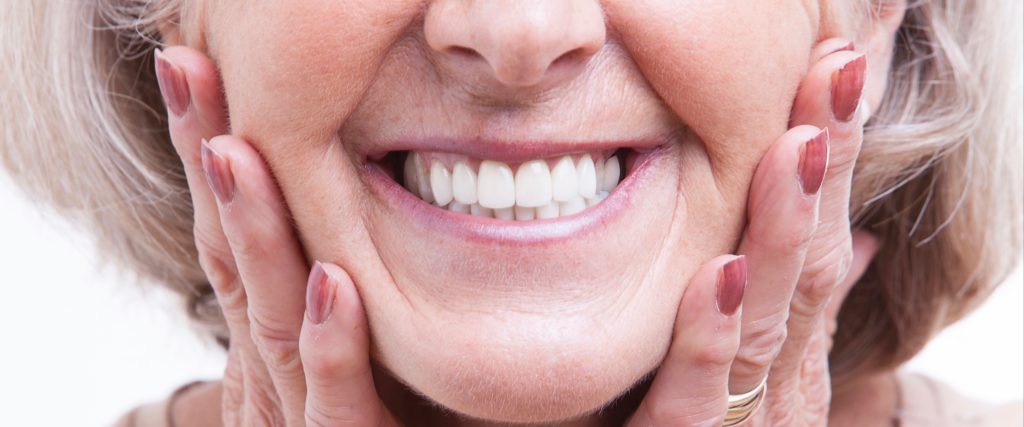 closeup of a woman's smile who has dentures